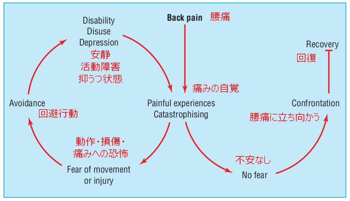 慢性痛 ループ Fear-Avoidance-Model