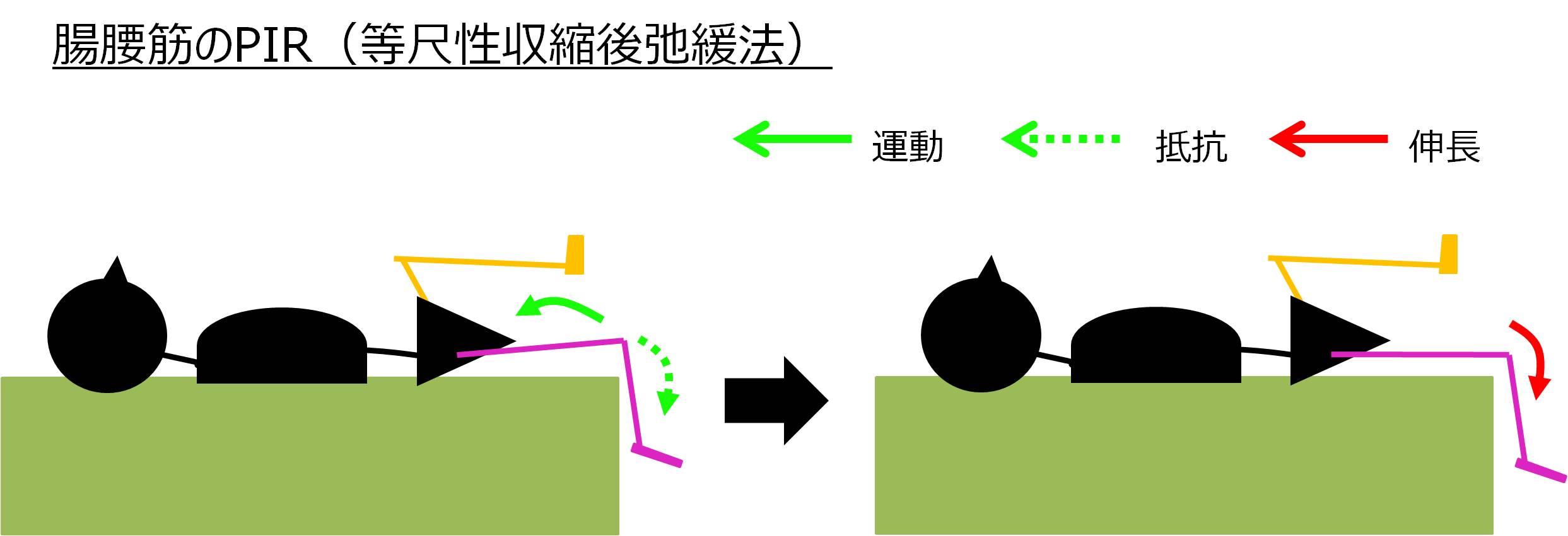 PIR腸腰筋の方法