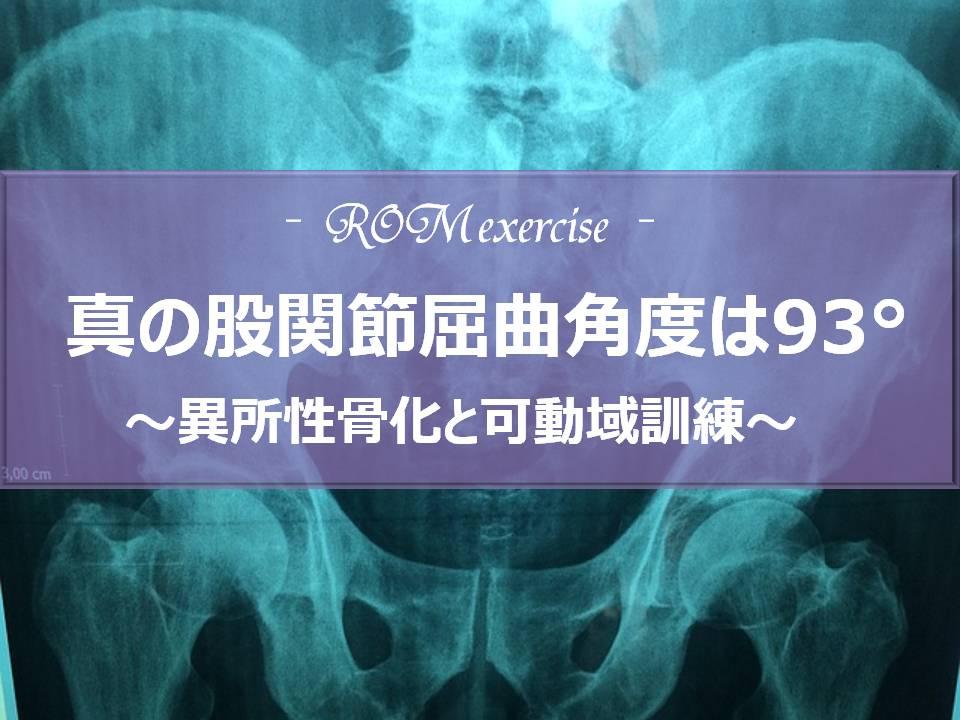 真の股関節屈曲角度は93º~異所性骨化と可動域訓練~