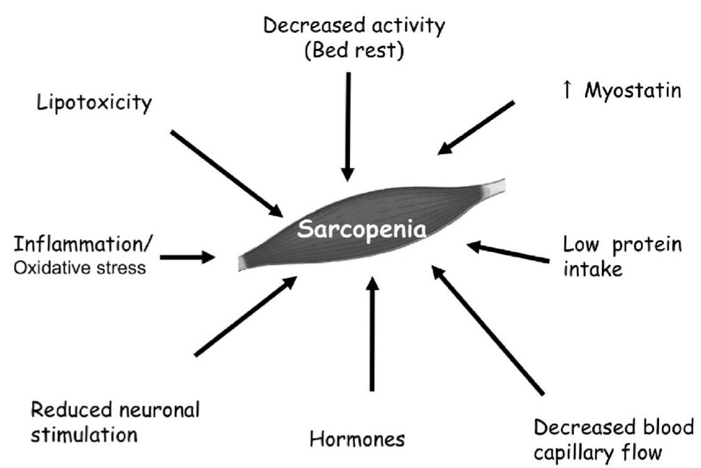 サルコペニア 原因